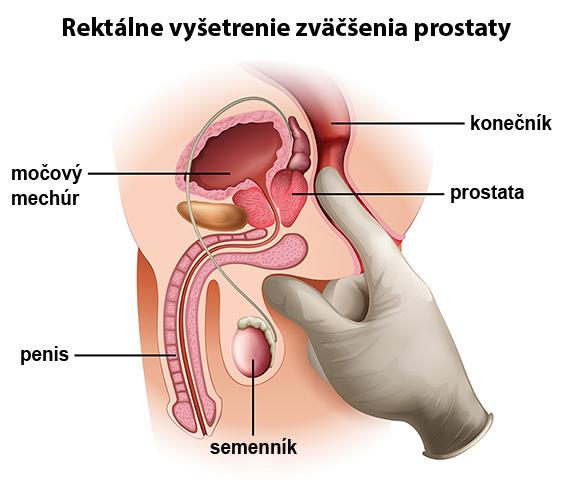 zväčšená prostata prejavy
